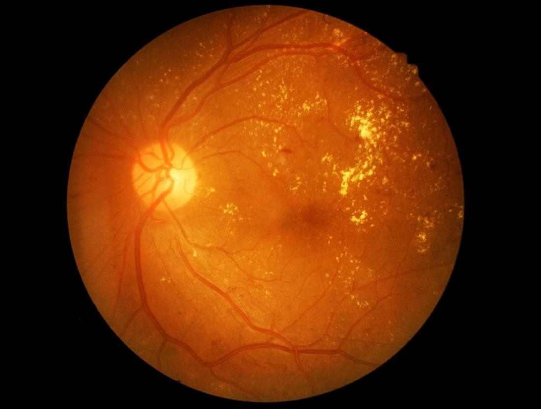 Retina Image of a Person with Diabetic Retinopathy